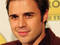 Kris Allen to undergo more wrist surgery