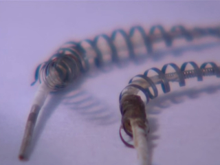 Rep. alleges deaths, kickbacks related to Essure