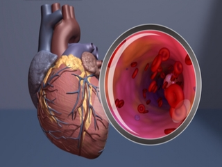 Nearly half of heart attacks may go undetected