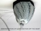 Flexible robot could help treat heart failure