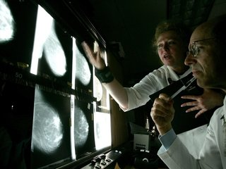 Study: Many with breast cancer don't need chemo